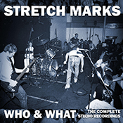 stretch-marks-who-and-what-175x175